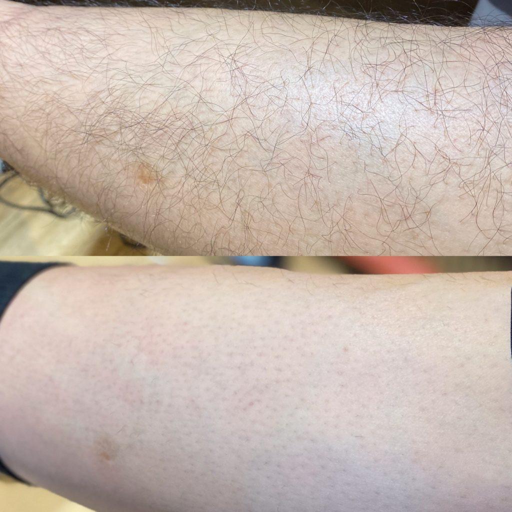 男性専門美容室での脱毛経過報告【岡の足】