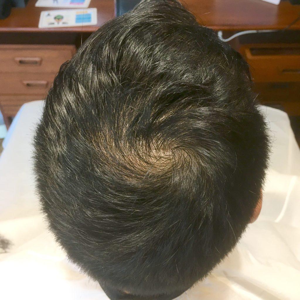 薄毛でお悩みの方必見!強髪スパ1年間やってみた