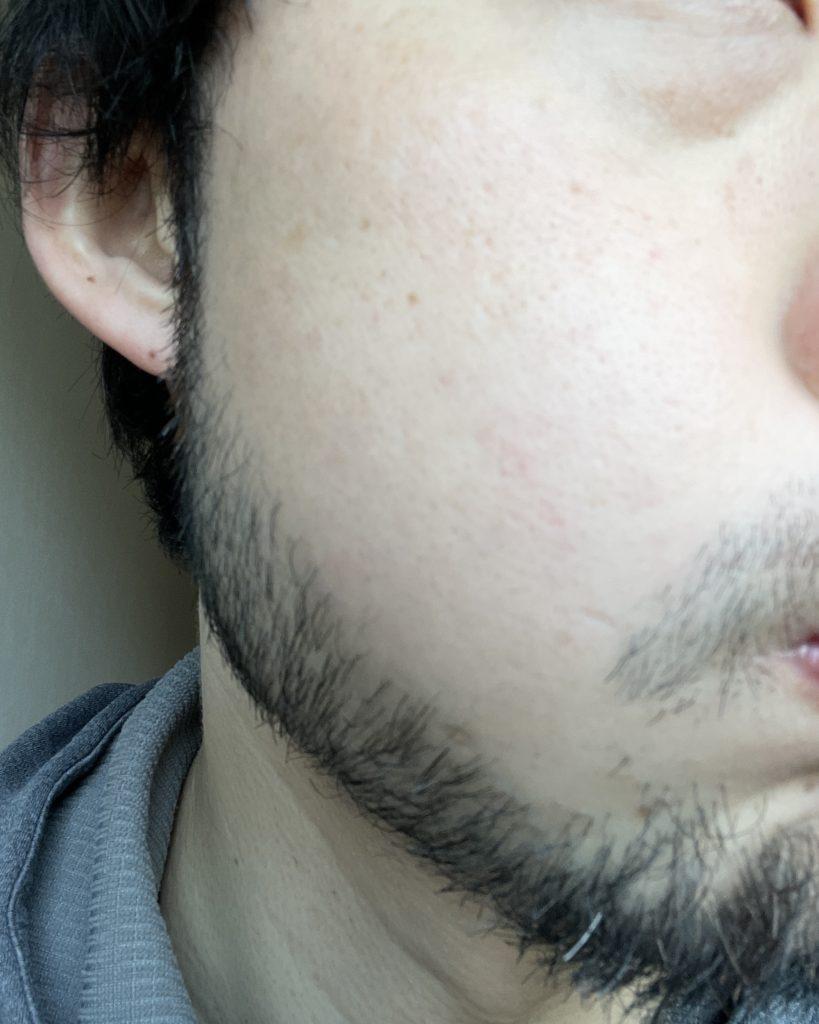 【髭脱毛】始めて一年後の状態